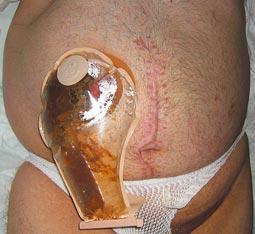 Cancer de colon operacion complicaciones - Cancer de colon bolsa